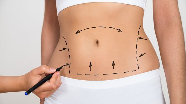 services-body-contouring