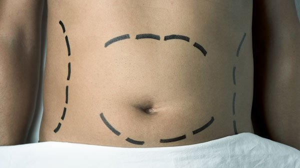 male-abdominoplasty