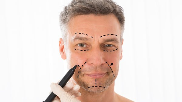 male-face-lift
